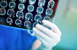 Как современная медицина ставит диагноз «Пищевая зависимость»?