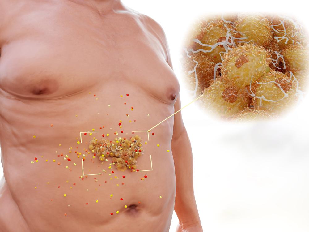 Поздняя стадия пищевой зависимости